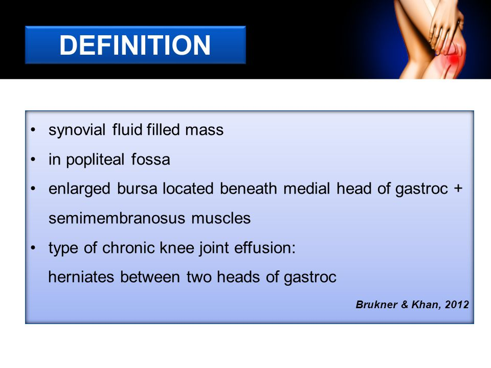DEFINITION synovial fluid filled mass in popliteal fossa