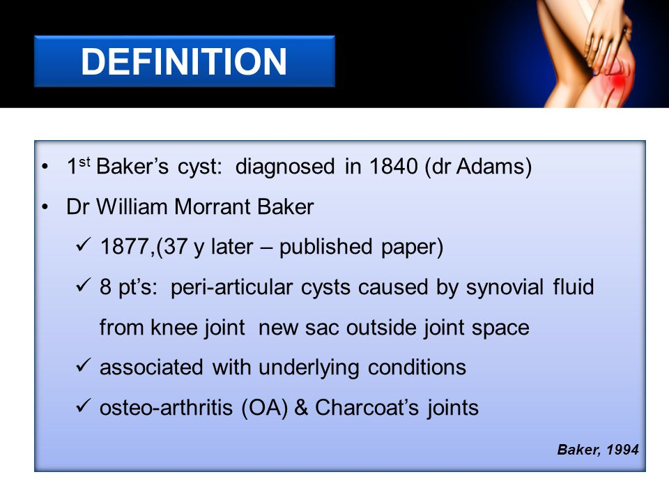 DEFINITION 1st Baker's cyst: diagnosed in 1840 (dr Adams)