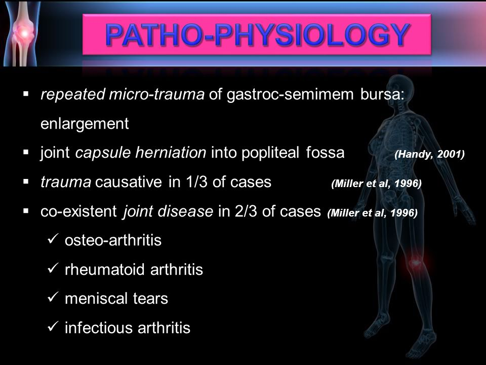 PATHO-PHYSIOLOGY repeated micro-trauma of gastroc-semimem bursa: enlargement. joint capsule herniation into popliteal fossa (Handy, 2001)