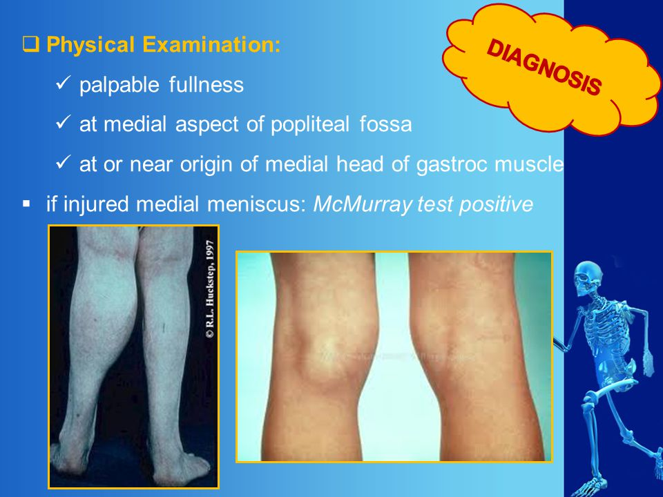 DIAGNOSIS Physical Examination: palpable fullness. at medial aspect of popliteal fossa. at or near origin of medial head of gastroc muscle.