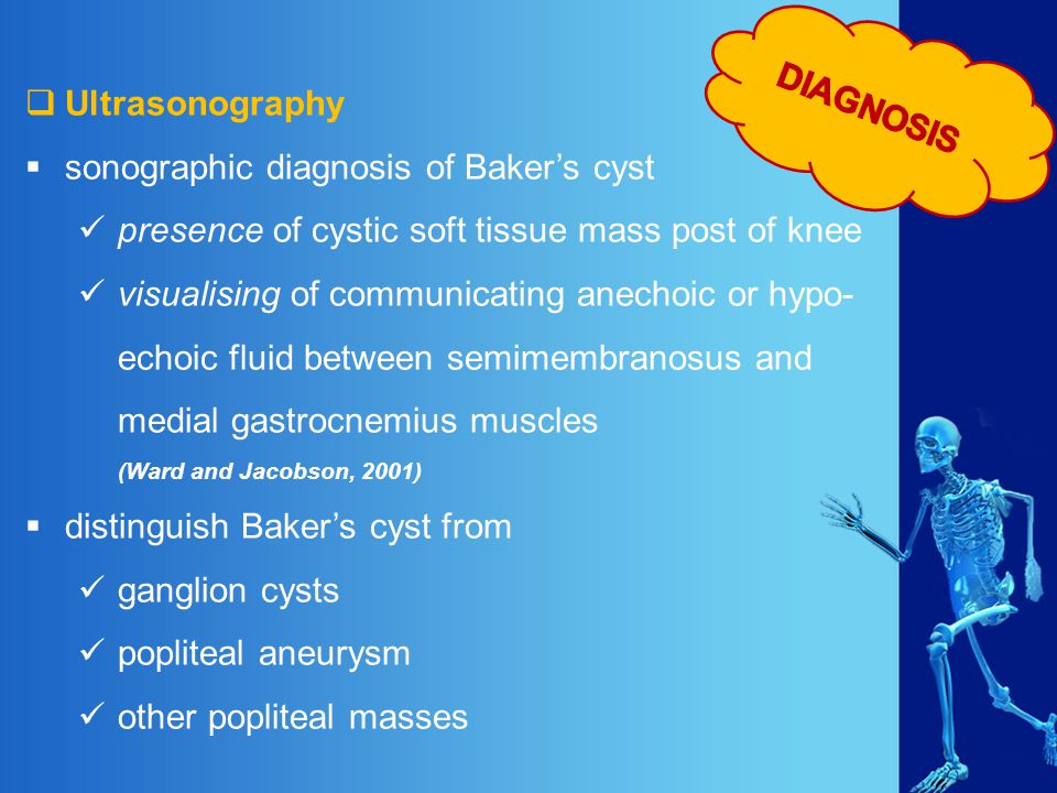 DIAGNOSIS Ultrasonography. sonographic diagnosis of Baker's cyst. presence of cystic soft tissue mass post of knee.