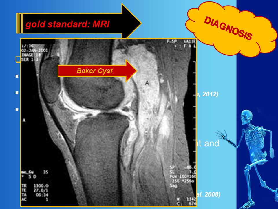 Magnetic Resonance Imaging (MRI) diagnosis Baker's cyst