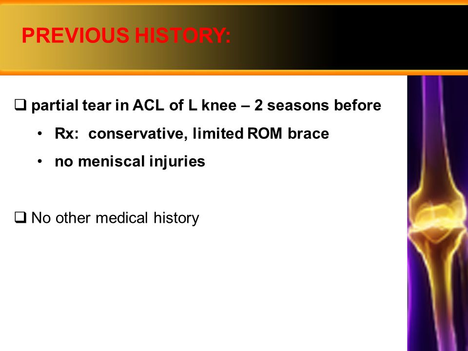 PREVIOUS HISTORY: partial tear in ACL of L knee – 2 seasons before
