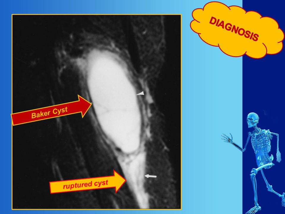 DIAGNOSIS Baker Cyst ruptured cyst