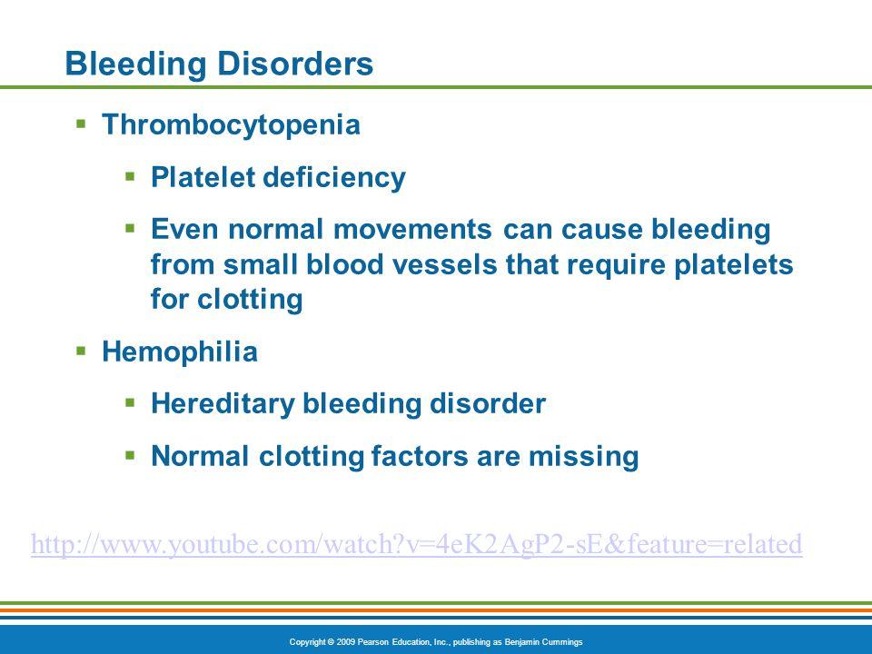 Bleeding Disorders Thrombocytopenia Platelet deficiency