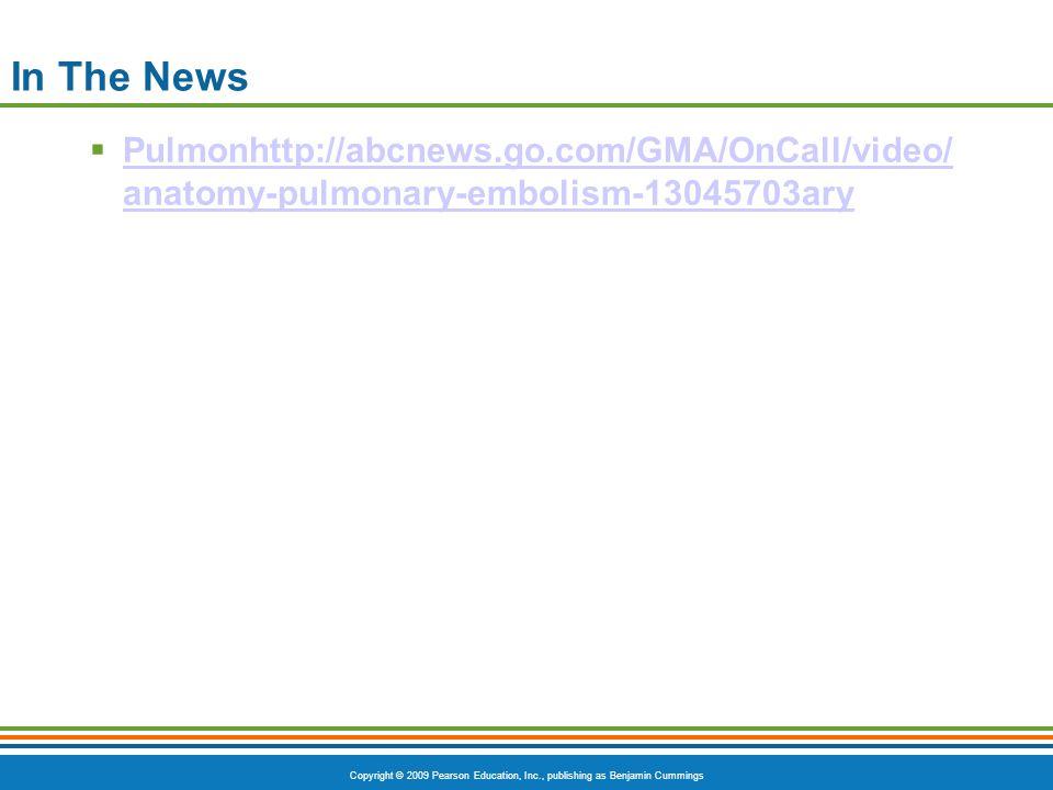 In The News Pulmonhttp://abcnews.go.com/GMA/OnCall/video/anatomy-pulmonary-embolism-13045703ary