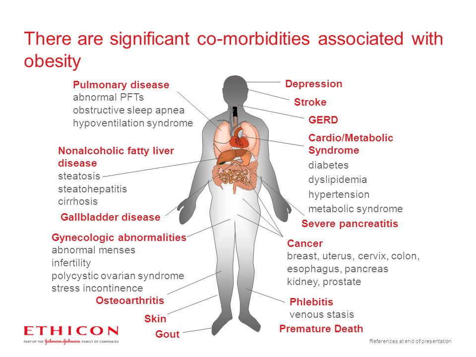 There are significant co-morbidities associated with obesity