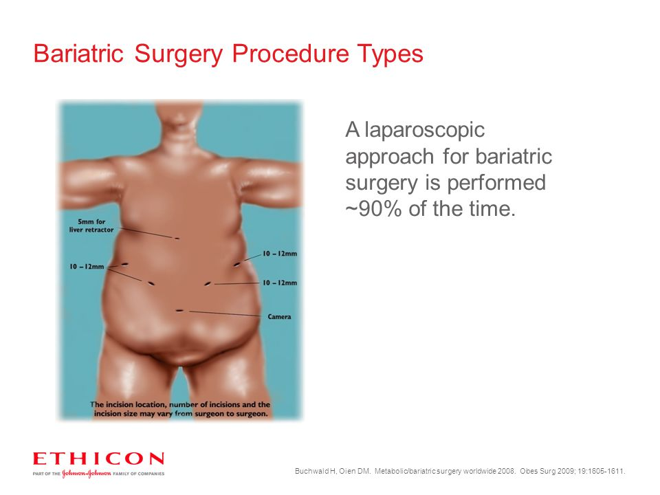 Bariatric Surgery Procedure Types