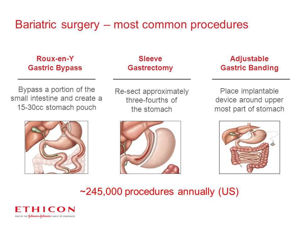 Bariatric surgery – most common procedures