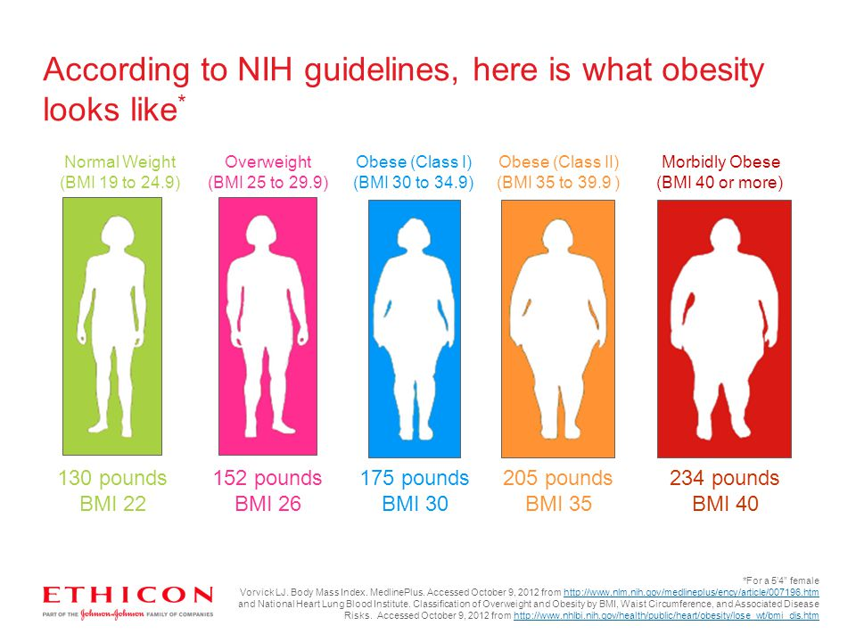 According to NIH guidelines, here is what obesity looks like*