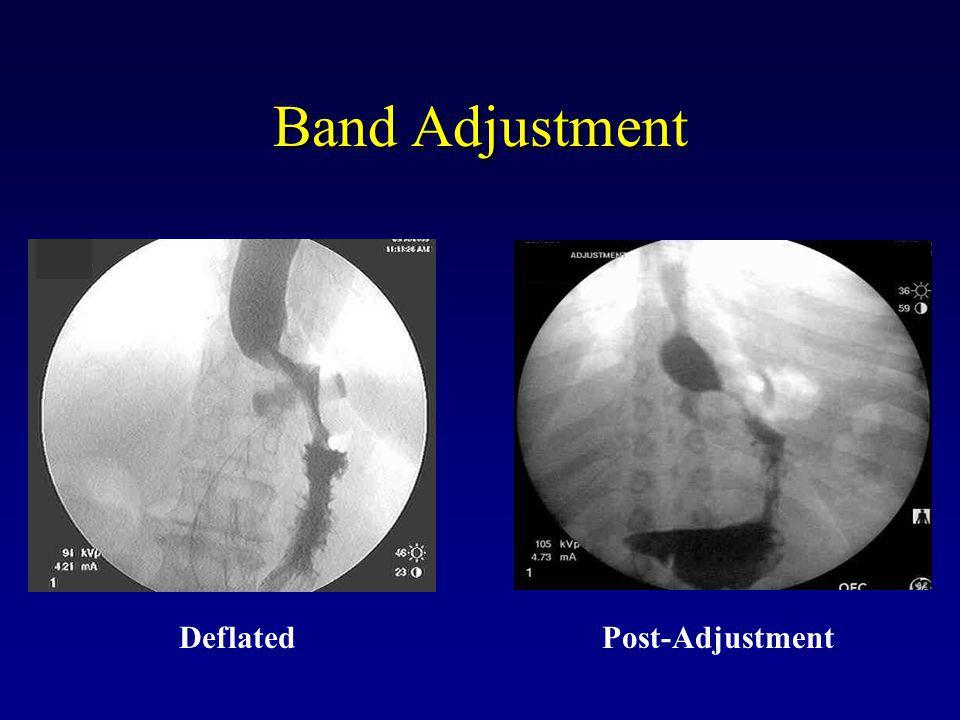 Band Adjustment Deflated Post-Adjustment