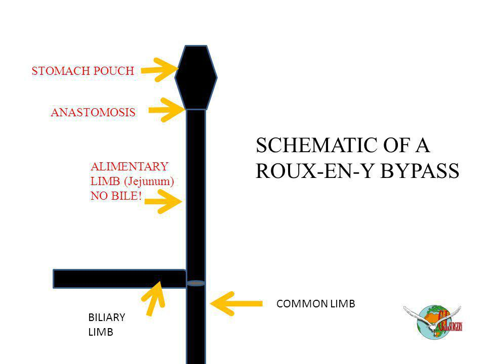 SCHEMATIC OF A ROUX-EN-Y BYPASS STOMACH POUCH ANASTOMOSIS ALIMENTARY