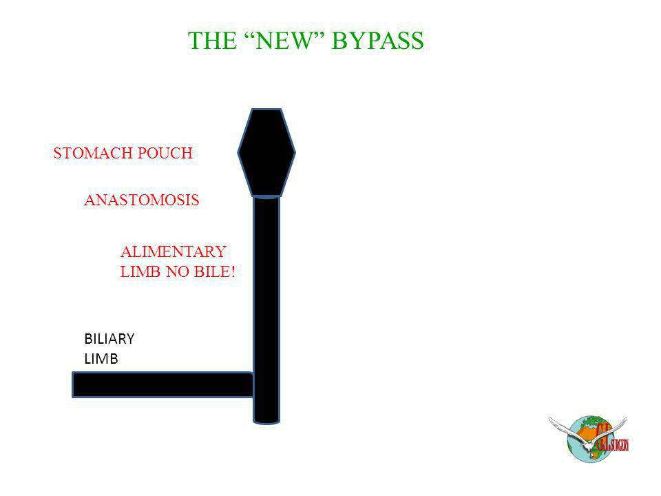 THE NEW BYPASS STOMACH POUCH ANASTOMOSIS ALIMENTARY LIMB NO BILE!