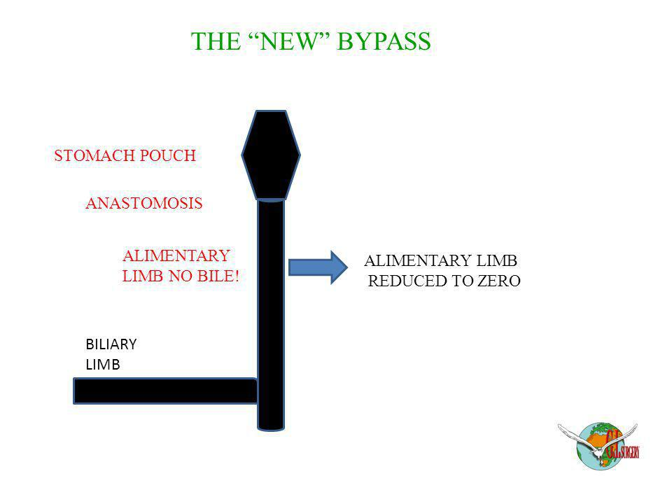 THE NEW BYPASS STOMACH POUCH ANASTOMOSIS ALIMENTARY ALIMENTARY LIMB