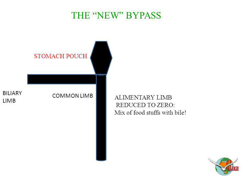 THE NEW BYPASS STOMACH POUCH BILIARY COMMON LIMB LIMB