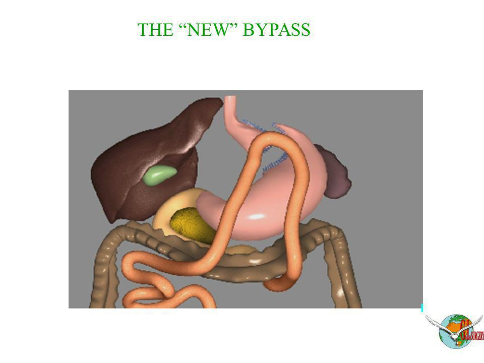 THE NEW BYPASS