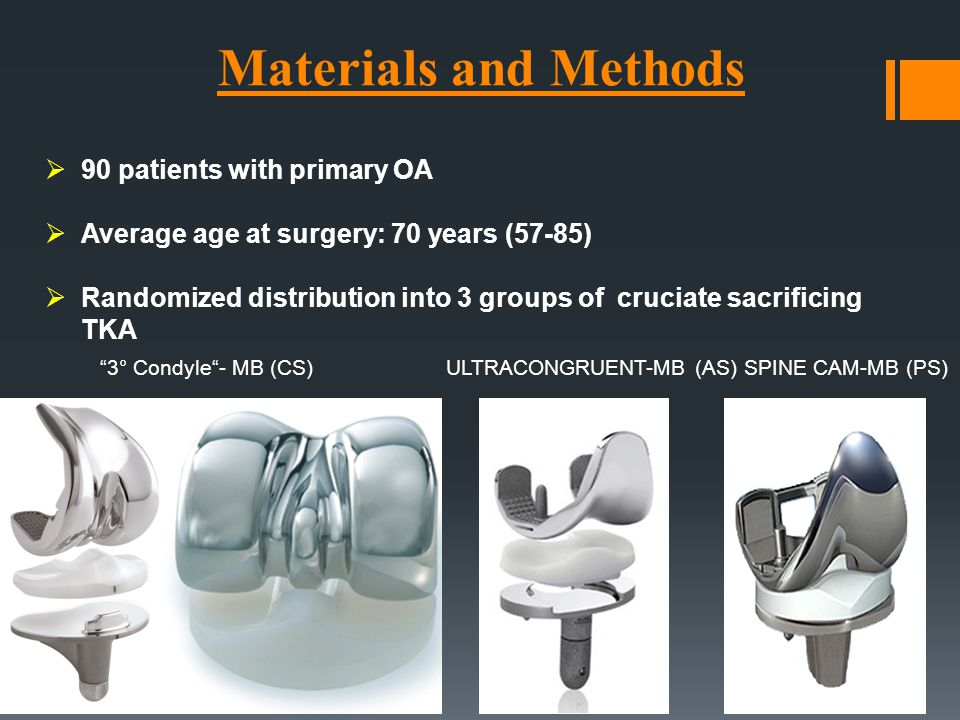 Materials and Methods 90 patients with primary OA