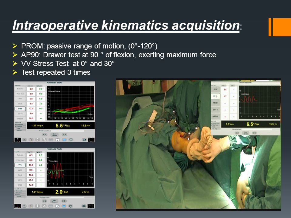 Intraoperative kinematics acquisition: