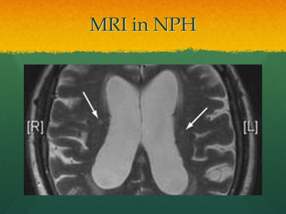 MRI in NPH