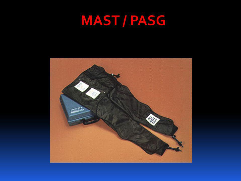 MAST / PASG PASG, also known as a military anti-shock trouser, is sometimes still used in the pre-hospital and.