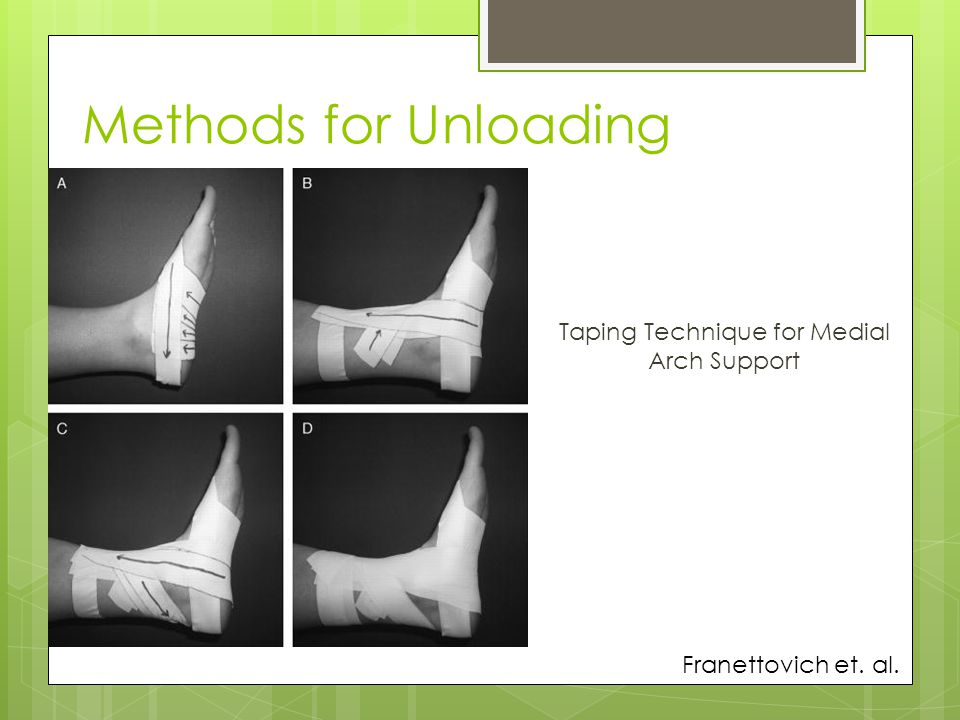 Taping Technique for Medial Arch Support