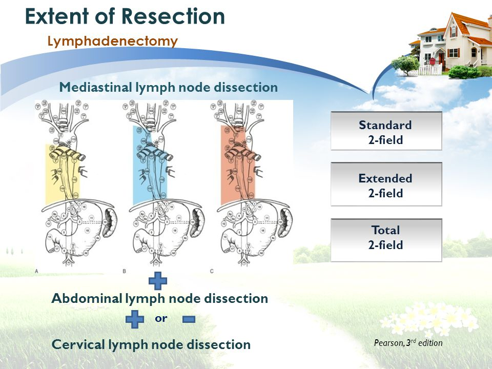 Extent of Resection Lymphadenectomy Mediastinal lymph node dissection