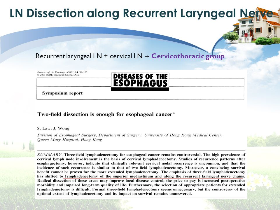 LN Dissection along Recurrent Laryngeal Nerve