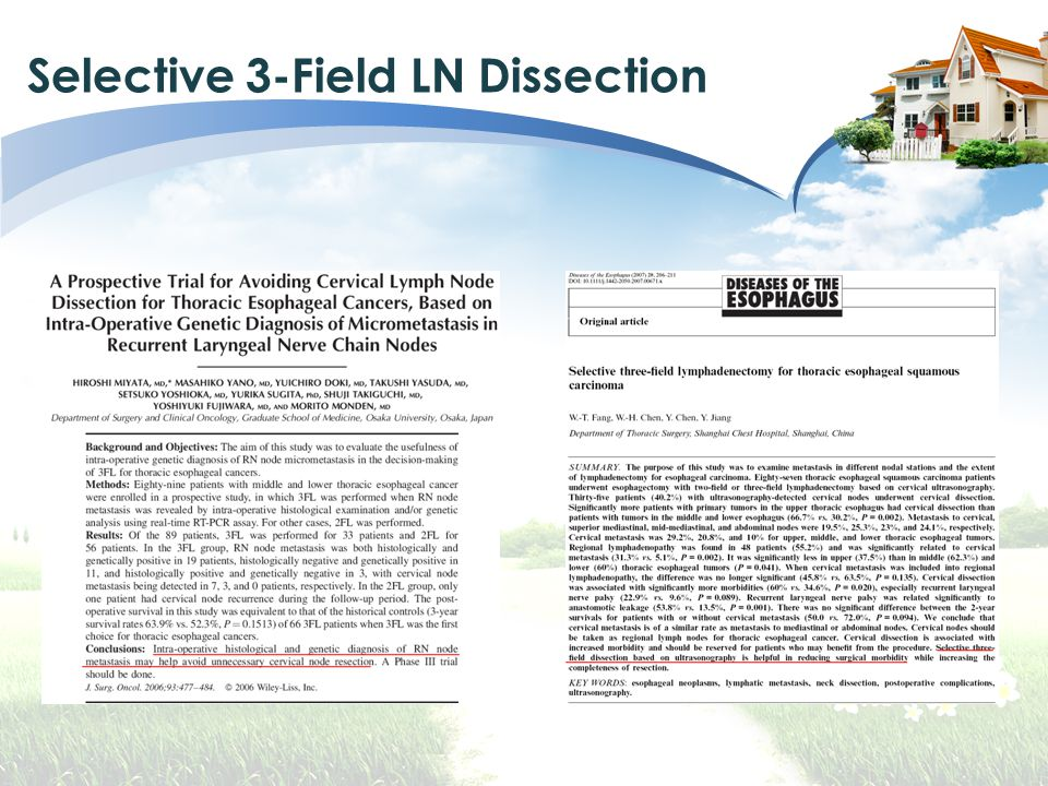 Selective 3-Field LN Dissection