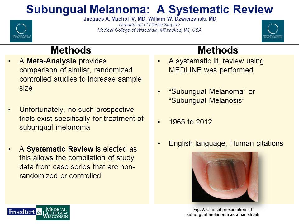 Fig. 2. Clinical presentation of subungual melanoma as a nail streak