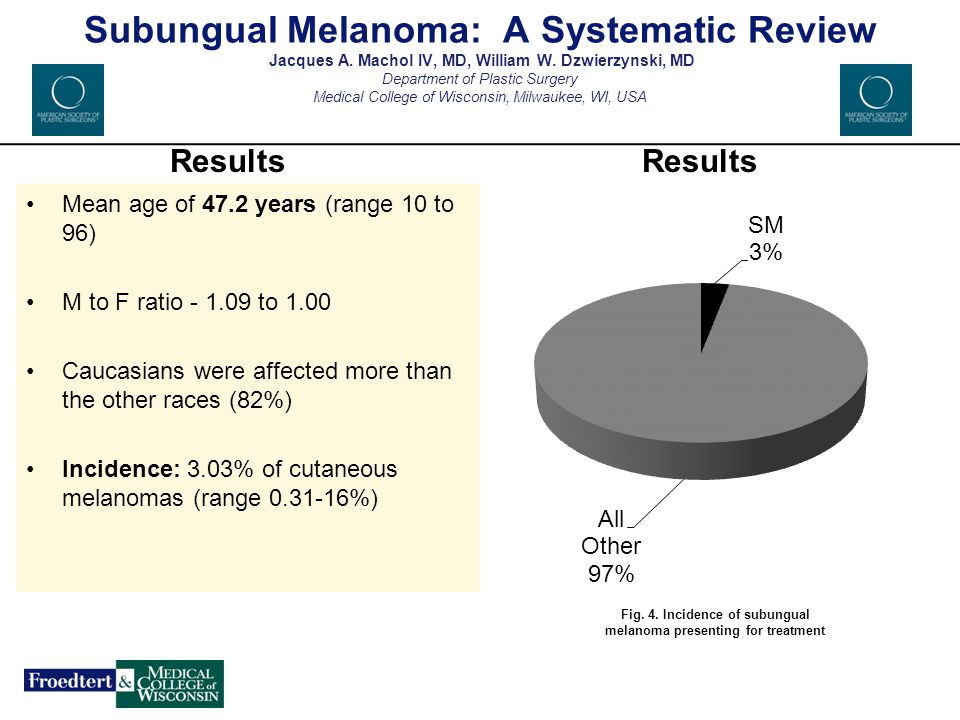 Fig. 4. Incidence of subungual melanoma presenting for treatment