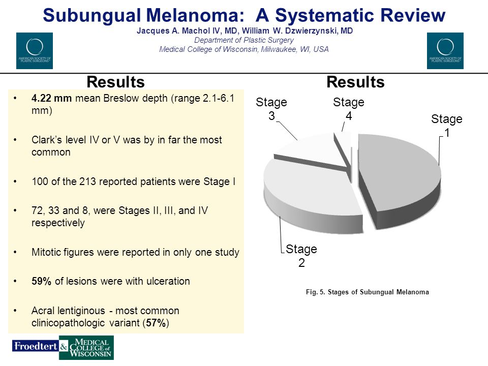 Fig. 5. Stages of Subungual Melanoma