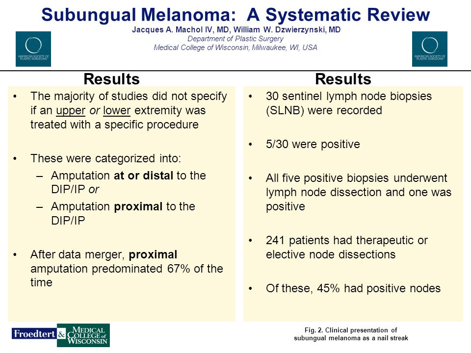 subungual melanoma a systematic review jacques a   ppt