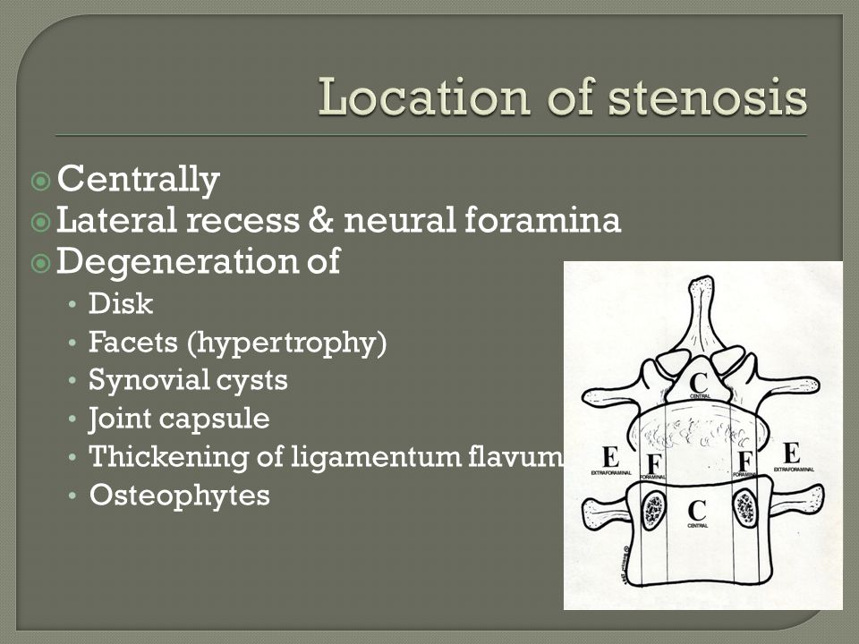 Location of stenosis Centrally Lateral recess & neural foramina