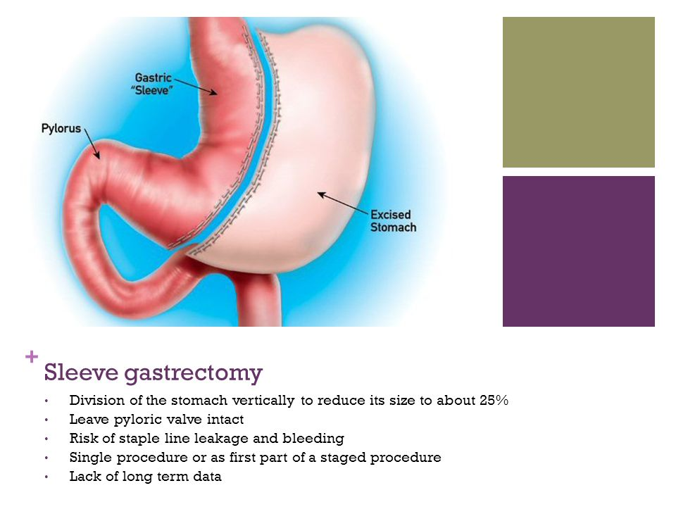 Sleeve gastrectomy or vertical gastrectomy is a new form of bariatric procedure in weight management. It involves removal of >75% of stomach and leaving a small gastric tube and this procedure resulting decrease in the stomach size inhibits distention of the stomach and increasing the patient's sensation of fullness and decreasing their appetite. Some posit-increased satiety results from the decrease in production of an appetite hormone - Ghrelin, which secreted by the part of the stomach that was removed during surgery.