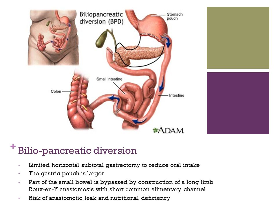 Bilio-pancreatic diversion