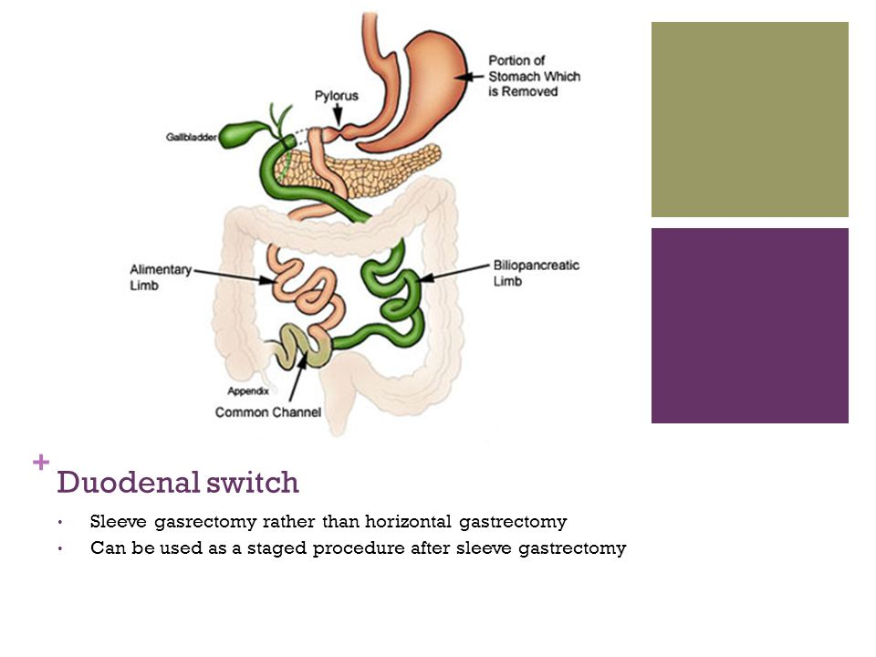 Duodenal switch Sleeve gasrectomy rather than horizontal gastrectomy