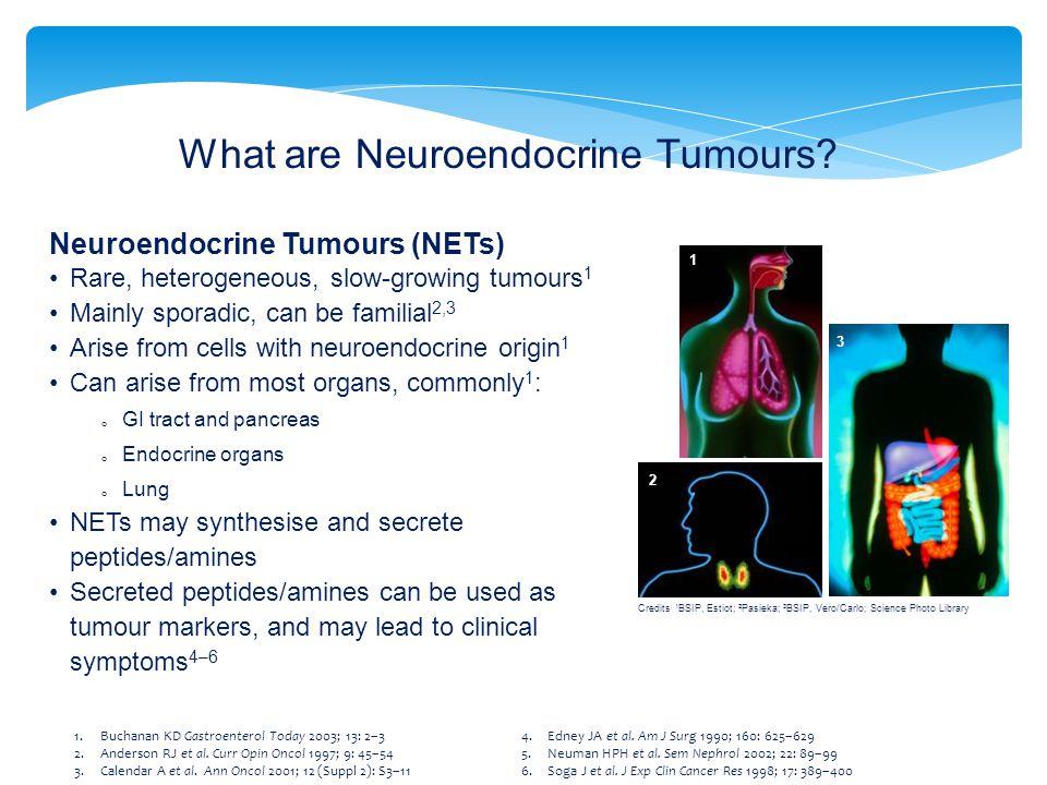 What are Neuroendocrine Tumours