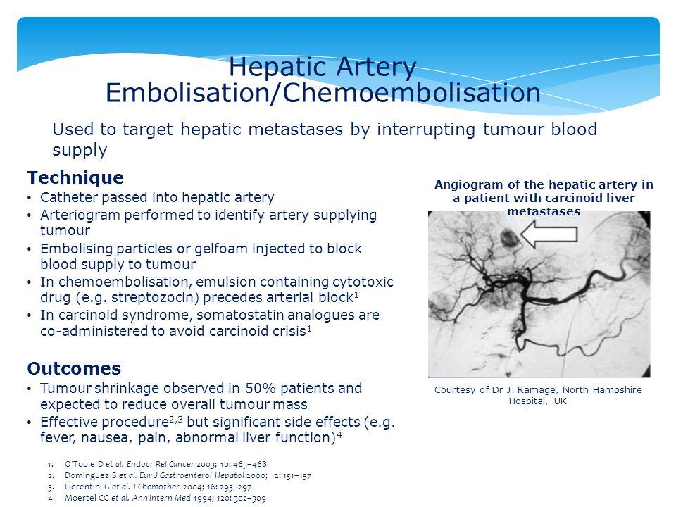 Hepatic Artery Embolisation/Chemoembolisation