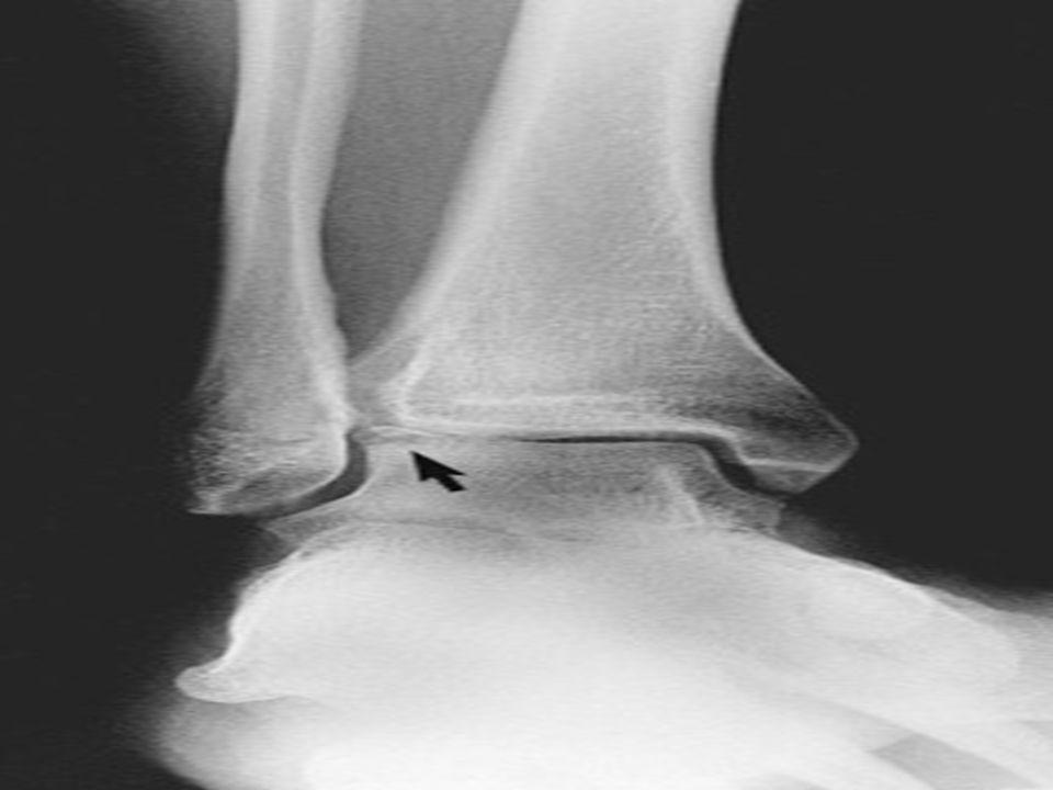 Osteochondral Lesion Presentation