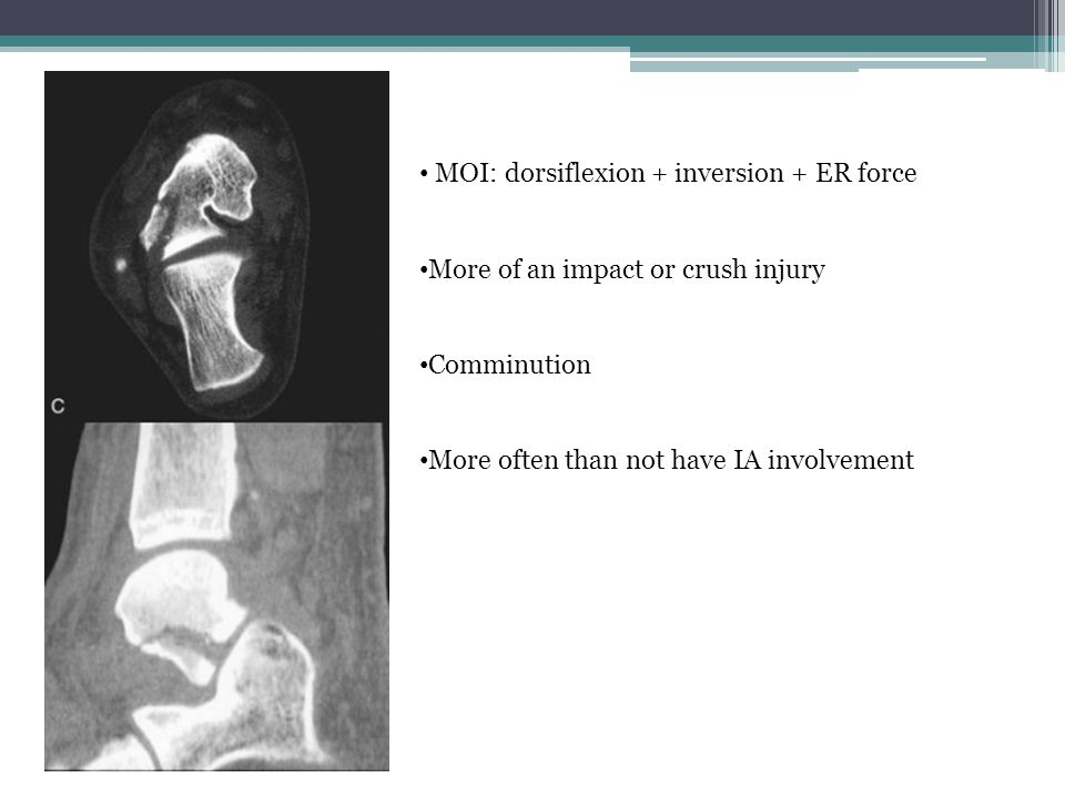 MOI: dorsiflexion + inversion + ER force