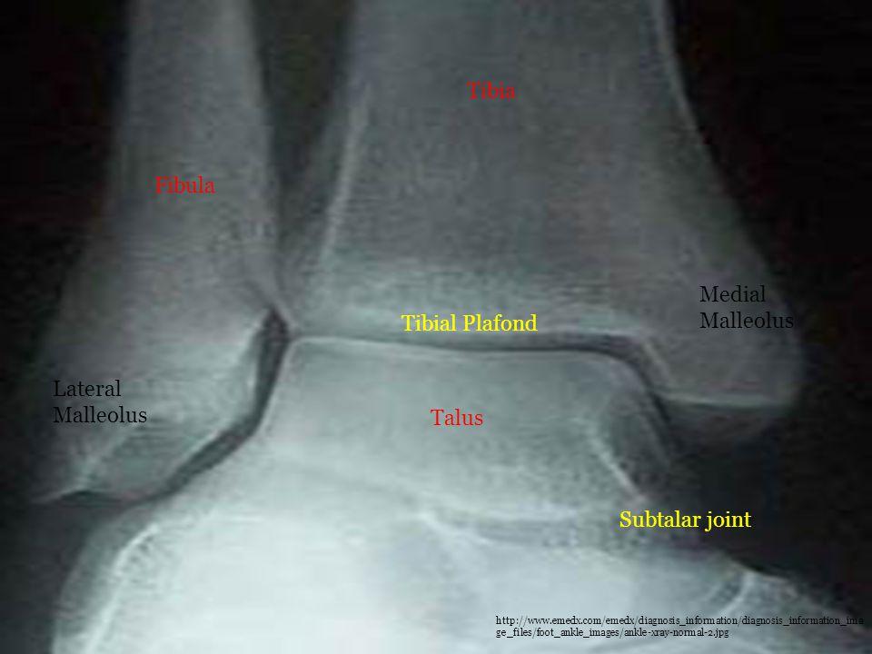 Tibia Fibula Medial Malleolus Tibial Plafond Lateral Malleolus Talus