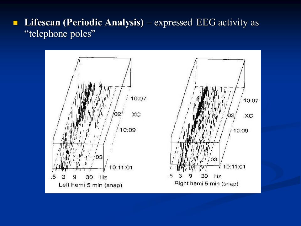 Lifescan (Periodic Analysis) – expressed EEG activity as telephone poles
