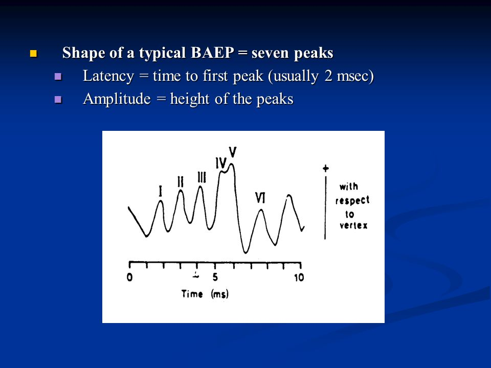 Shape of a typical BAEP = seven peaks