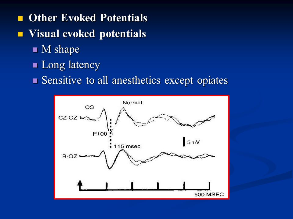 Other Evoked Potentials