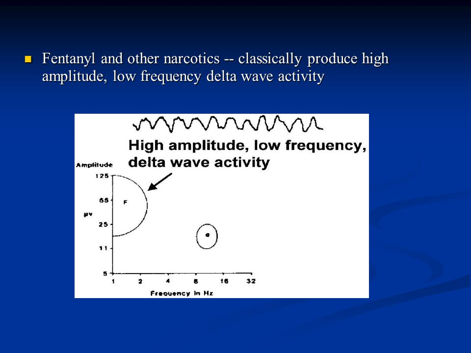 Fentanyl and other narcotics -- classically produce high amplitude, low frequency delta wave activity