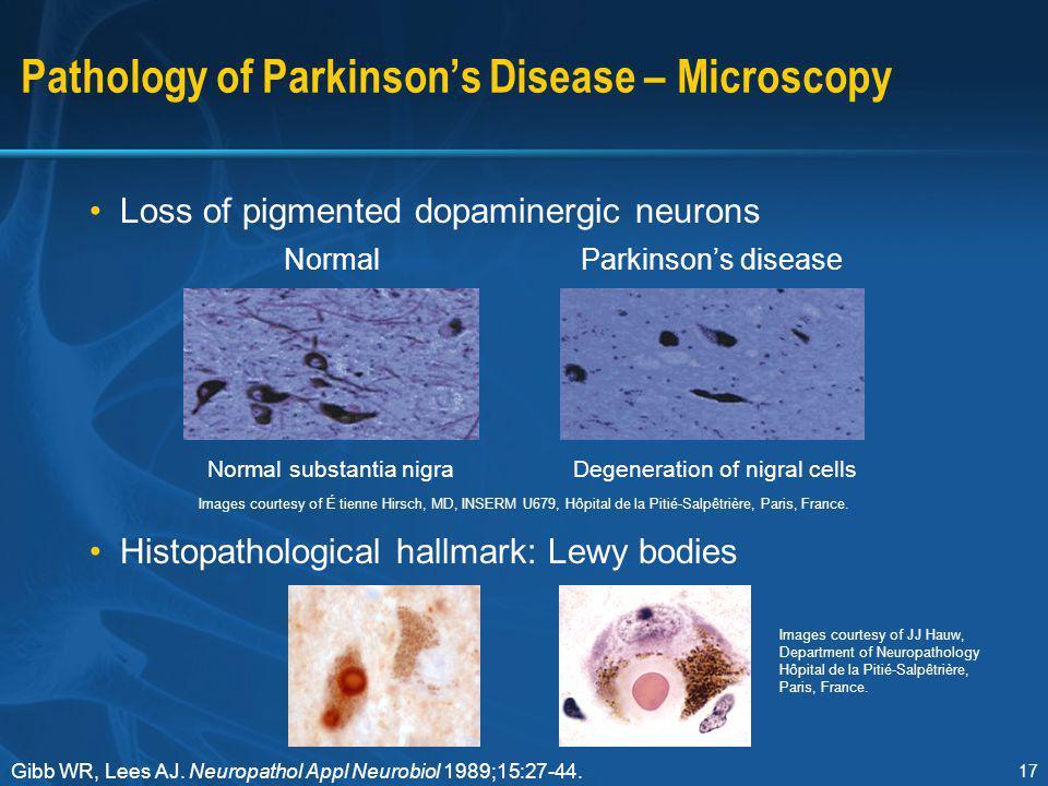 Pathology of Parkinson's Disease – Microscopy