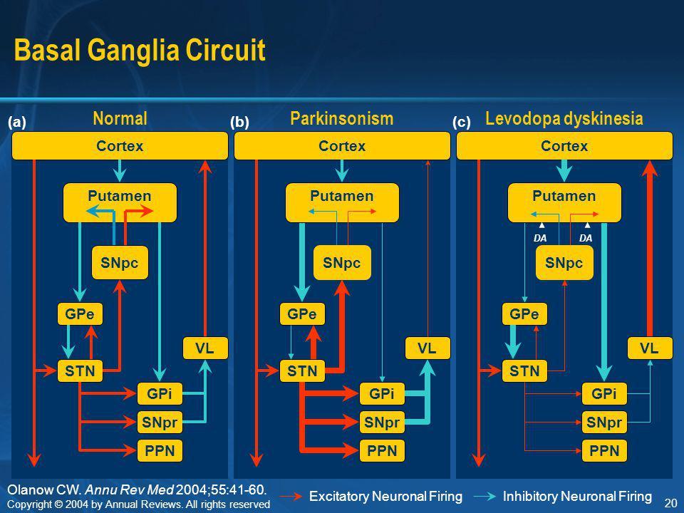 Basal Ganglia Circuit Normal Parkinsonism Levodopa dyskinesia Cortex