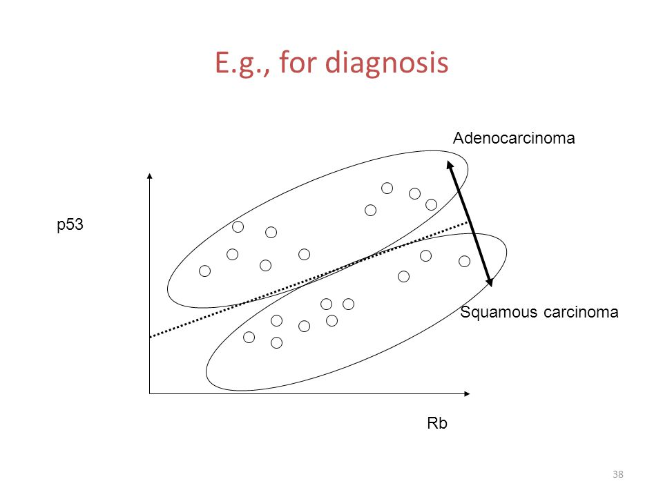 E.g., for diagnosis Adenocarcinoma p53 Squamous carcinoma Rb