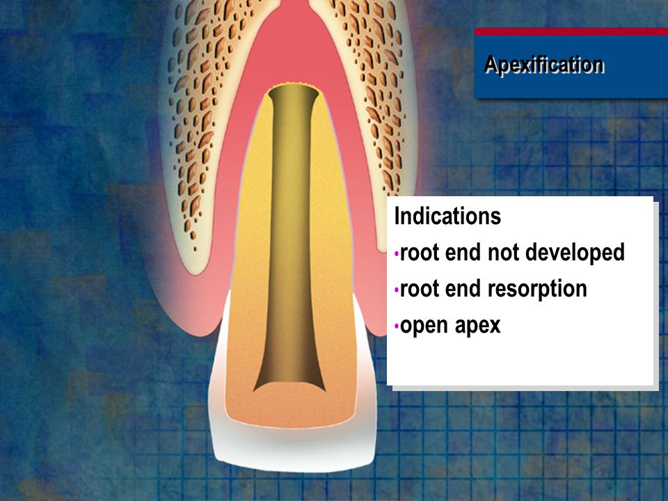 Indications root end not developed root end resorption open apex