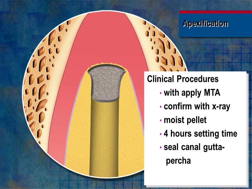 Clinical Procedures with apply MTA confirm with x-ray moist pellet